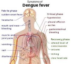 dengue fever images symptoms